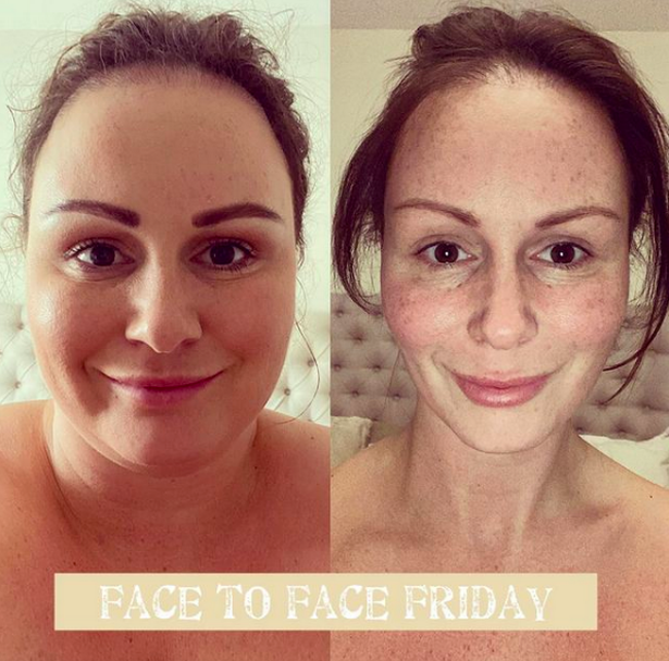 Chanelle Hayes showed off her dramatic weight loss in before and after photos